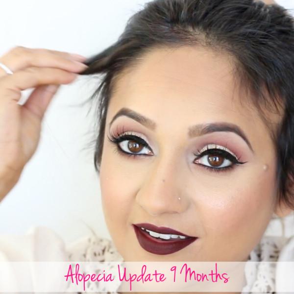Alopecia Update 9 Months Deepa Berar