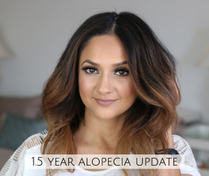 One and Half Year Alopecia Areata Update