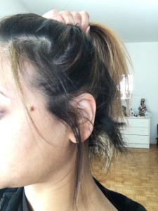 Week 12 Alopecia Regrowth