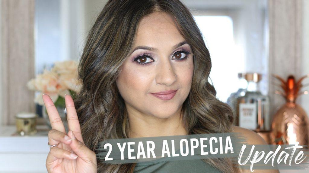 2 year Alopecia Update Deepa Berar