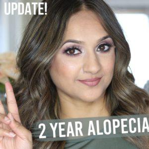 2 Year Alopecia Update video Deepa Berar