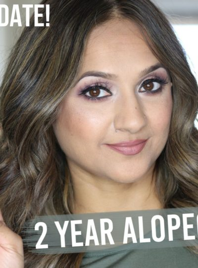 2 Year Alopecia Update video Deepa Berar