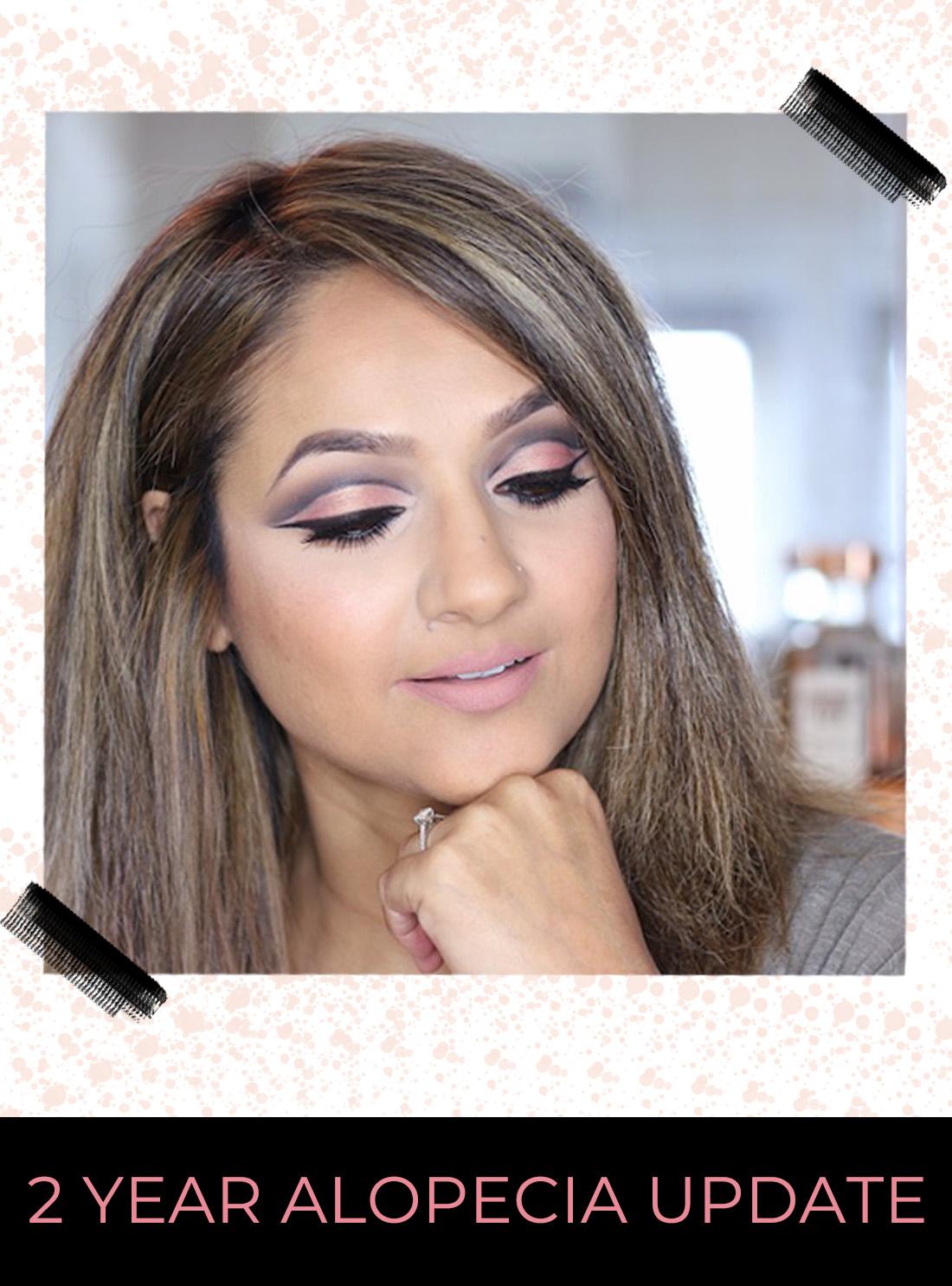 2 Year Alopecia Update Deepa Berar Blog