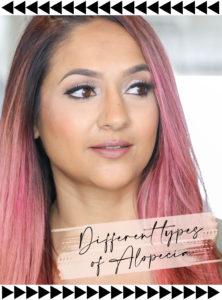 Different-types-of-Alopecai-Deepa-Berar