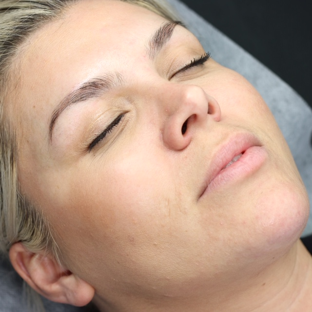 Jennifer Before San Diego Microblading