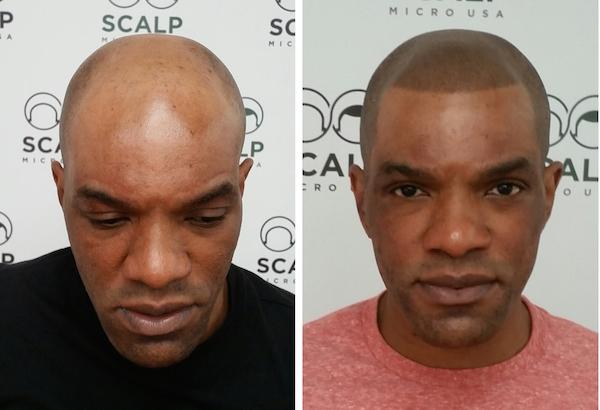 San Diego Scalp Micropigmentation