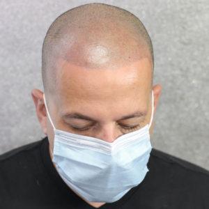 After San Diego Scalp Micropigmentation