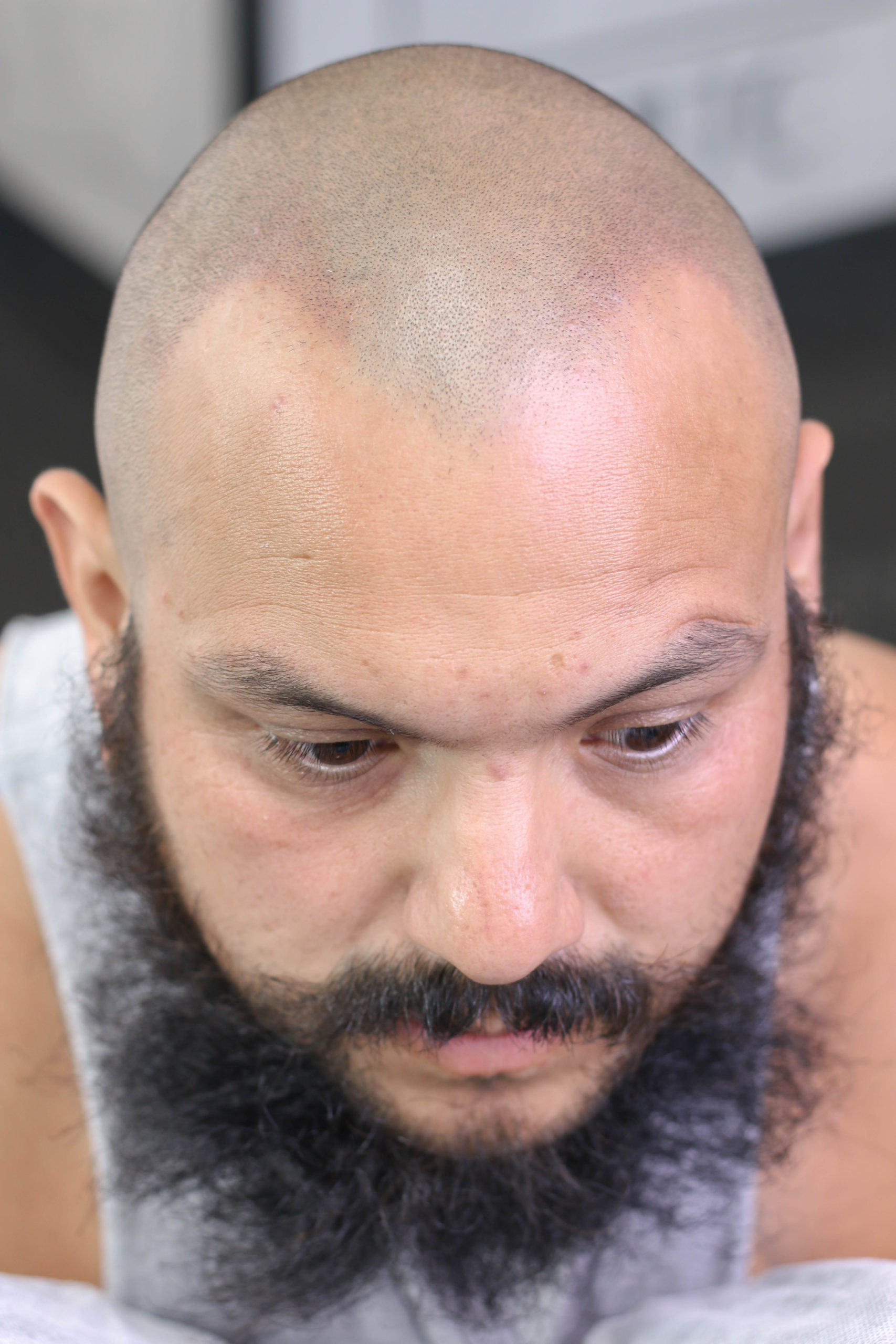 After San Diego Scalp Micropigmentation Density Fill