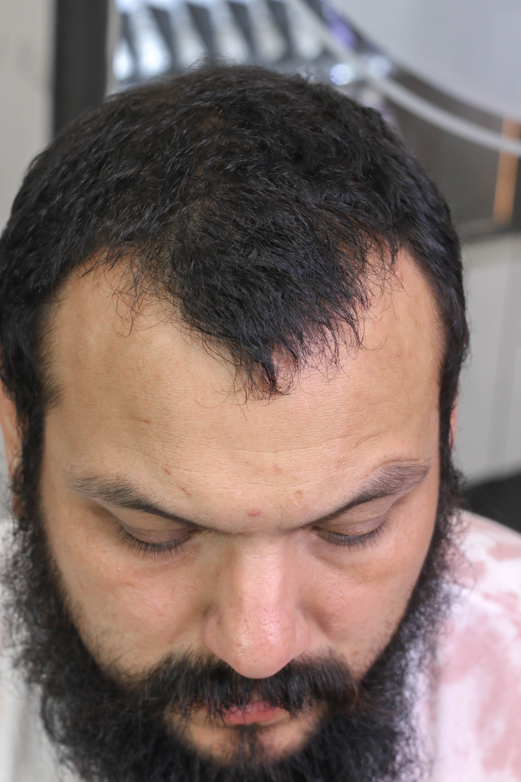 Before San Diego Scalp Micropigmentation Density Fill