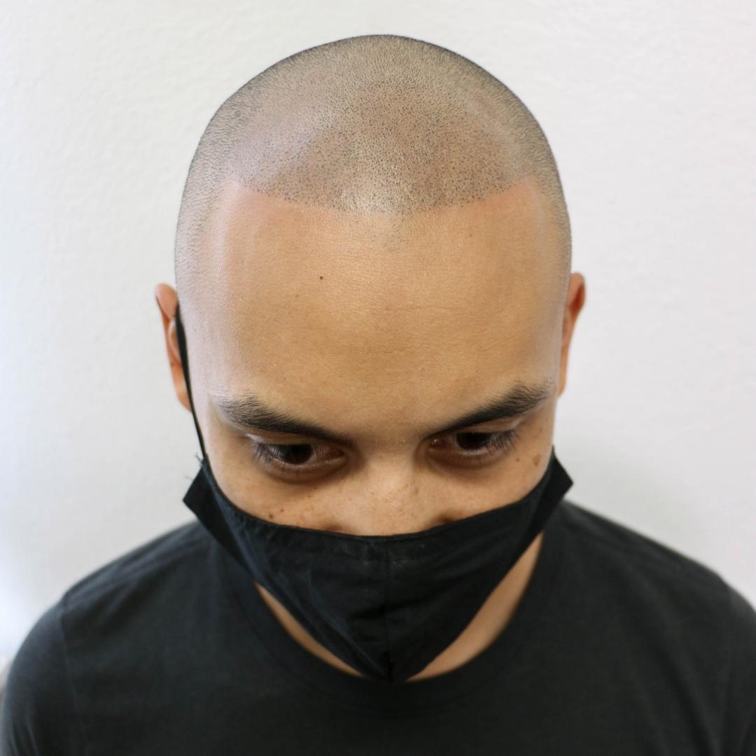 Ryan After San Diego Scalp Micropigmentation