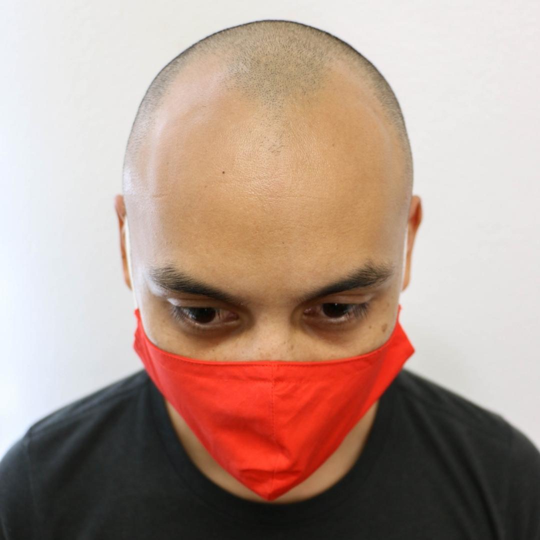 Ryan Before San Diego Scalp Micropigmentation